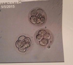 IVF 5 - embryos